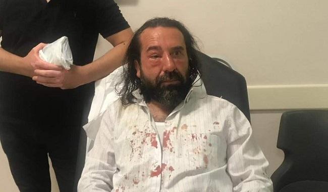 İYİ Parti'nin kurucularından Metin Bozkurt'a saldırı!
