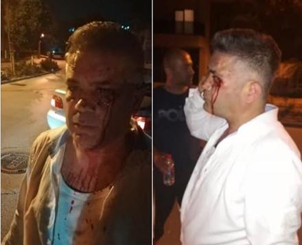 Son Dakika... Bursa'da İYİ Partili Meclis üyesine saldırı