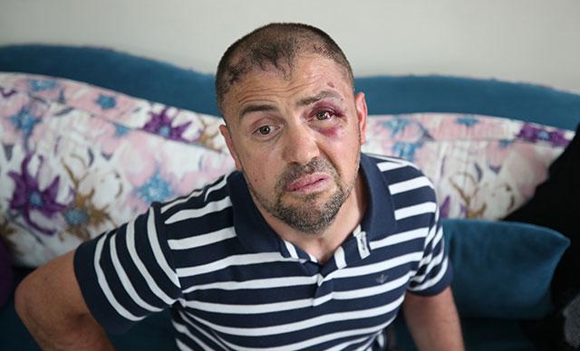 Türkiye isyan etti ve Gazi'yi darp edenler tutuklandı!