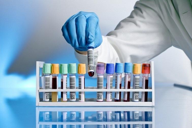 İstanbul'daki özel laboratuvar test sonuçlarını gizlemiş!