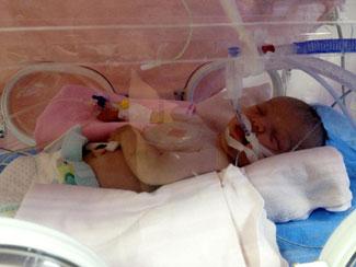Muhammet Can bebeğe 16 ayda 6 ameliyat