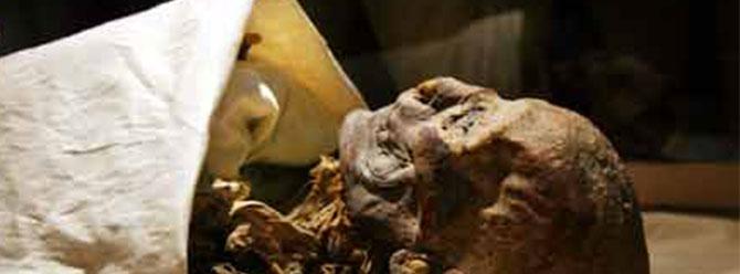 Damar tıkanıklığı 4 bin yıldır var
