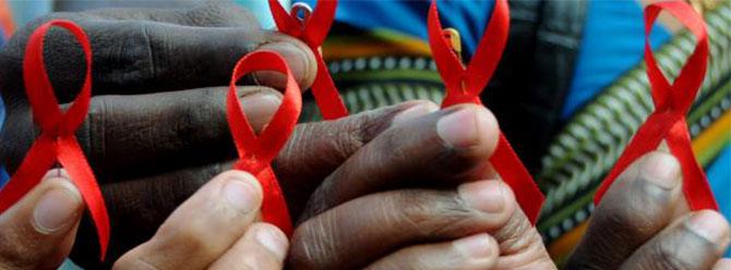 G. Afrikada askerlerin yüzde 8,5i HIV taşıyor